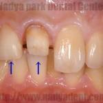 審美歯科 セラミック治療 漂白治療 名古屋 症例