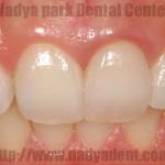審美歯科 メタルタトゥー 名古屋 症例
