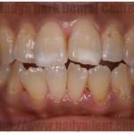 審美歯科 ホワイトニング オールセラミック 名古屋 症例