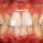 矯正歯科 審美歯科 ホワイトニング コラボ治療 名古屋 症例