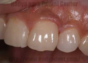 審美歯科 虫歯 名古屋 症例