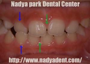 矯正歯科 名古屋 子供 症例
