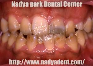 審美歯科 矯正歯科 セラミック 名古屋 症例