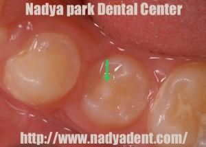 予防歯科 中心結節 名古屋 症例