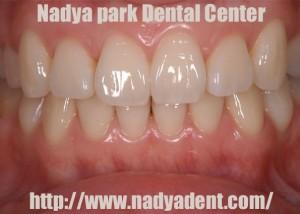 ホワイトニング 矯正歯科 名古屋 症例