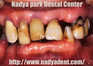 審美歯科 義歯 入れ歯 名古屋 症例