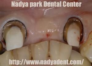 審美歯科 ブリッジ 名古屋 症例