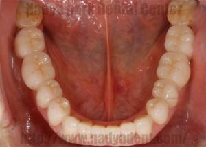 インプラント 審美歯科 アンチエイジング オールセラミック ラミネートべニア 名古屋 症例