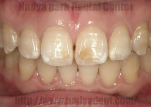 審美歯科 フルベニア 名古屋 症例