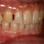 インプラント ホワイトニング アンチエイジング セラミック治療 審美歯科 名古屋 症例