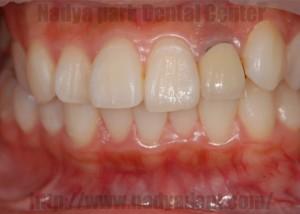 審美歯科 セラミック矯正 名古屋 症例