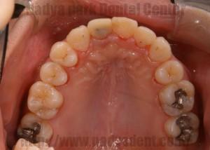 矯正歯科 ハーフリンガル矯正 名古屋 症例