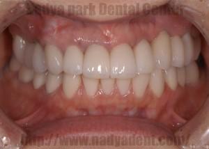 インプラント 審美歯科 オールセラミックス ジルコニア 名古屋 被せ物 症例