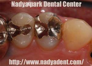 審美歯科 CEREC セレック 名古屋 症例