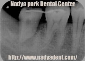 口腔外科 歯牙移植 名古屋 症例