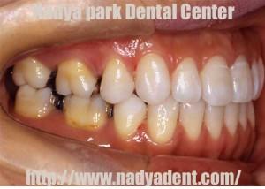 矯正歯科 リンガルブラケット セラミックブラケット 名古屋 症例