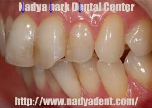 審美歯科 セラミック治療 名古屋 症例