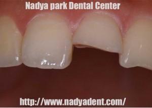 審美歯科 樹脂 名古屋 症例