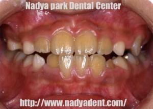 矯正歯科 小児 名古屋 症例