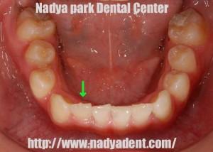 矯正歯科 子ども 名古屋 症例