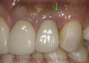 審美歯科 セラミック 名古屋 症例