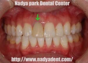 審美歯科 ホワイトニング 矯正歯科 セラミック治療 名古屋 症例