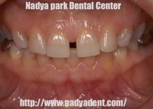 審美歯科 ホワイトニング ラミネートベニヤ 名古屋 症例