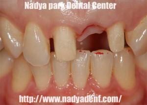 審美歯科 オールセラミック ブリッジ 名古屋 症例