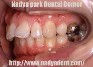 インプラント 矯正歯科 名古屋 症例