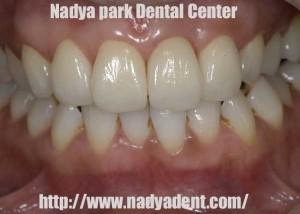 ホワイトニング 審美歯科 セラミック治療 名古屋 症例