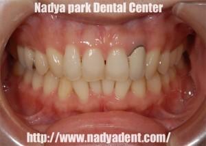 審美歯科 ホワイトニング 前歯 名古屋 症例