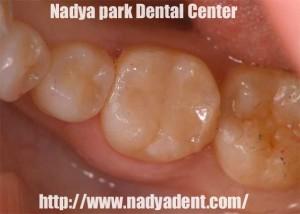 審美歯科 セレック セラミックス治療 名古屋 症例