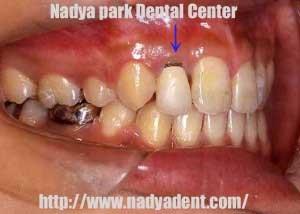 審美歯科 矯正歯科 オールセラミック治療 名古屋 症例