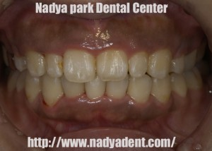 審美歯科 名古屋 矯正歯科 症例