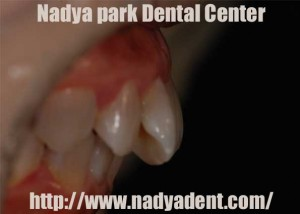 審美歯科 ホワイトニング 予防歯科 名古屋 症例