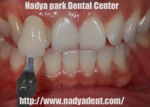審美歯科 予防歯科 小児歯科 名古屋 症例