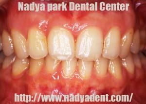 審美歯科 矯正歯科 名古屋 症例