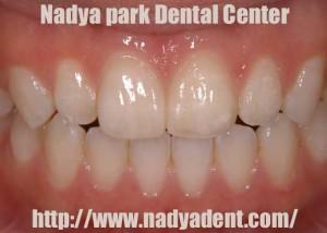 審美歯科 ホワイトニング 名古屋 症例