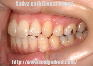 矯正歯科 名古屋 症例