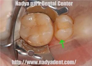 審美歯科 名古屋 セレック ワンデートリートメント 症例