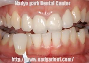 ホワイトニング 審美歯科 名古屋 症例