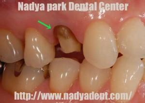 審美歯科 セレッククラウン 名古屋 症例