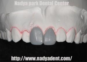 審美歯科 名古屋 症例