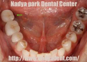 審美歯科 インプラント 名古屋 症例