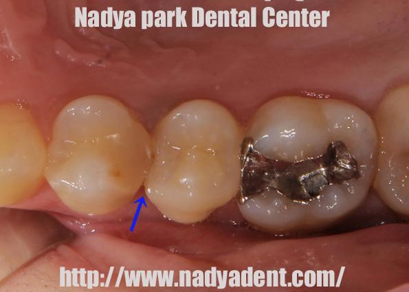 今回はセラミックを使った虫歯治療を紹介します。